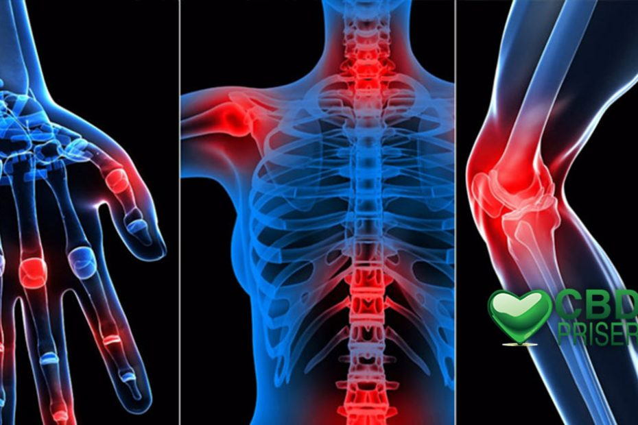 CBD Olja mot reumatism, artros eller andra inflammationsproblem